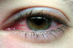 Teaching Kids About Pink Eye
